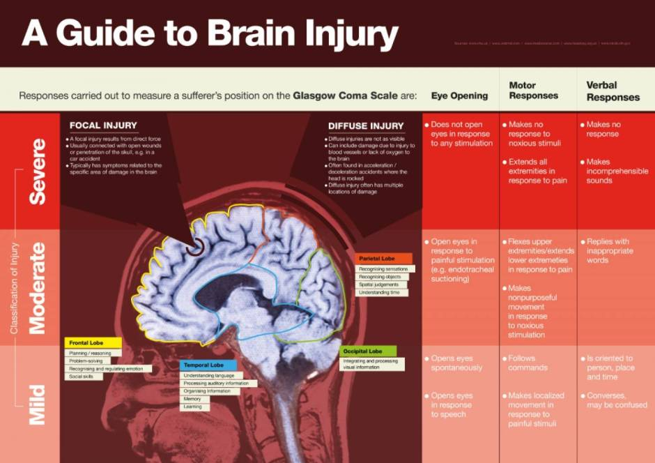 Guide-to-brain-injury